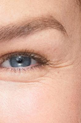 Under-eye wrinkles
