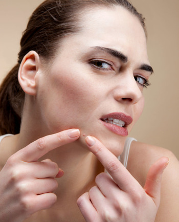 What is fungal acne and how can you treat it?